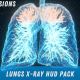Lungs X-Ray HUD Pack - VideoHive Item for Sale