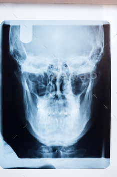 Close up of a x-ray of a human skull at the dental clinic