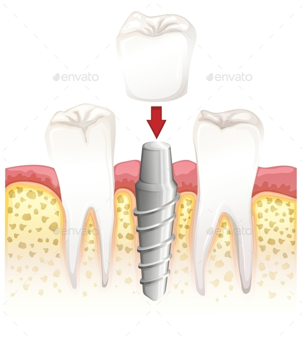 Dental Crown Procedure - Miscellaneous Conceptual