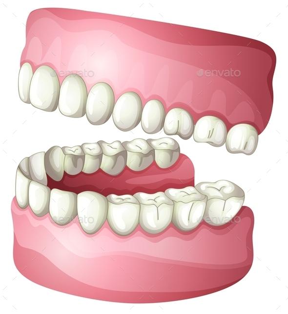 Denture - Miscellaneous Vectors