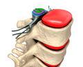 Spinal column with nerves and discs. - PhotoDune Item for Sale