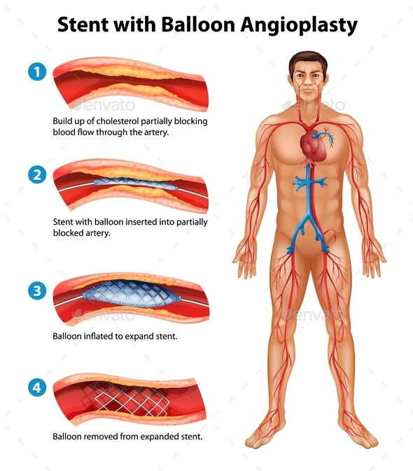 Stent Angioplasty Procedure - People Characters