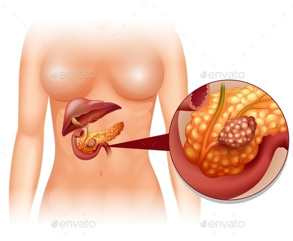 Pancreas Cancer in Woman