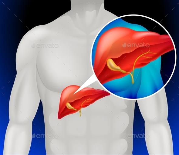 Liver Cancer Diagram in Detail - Miscellaneous Conceptual