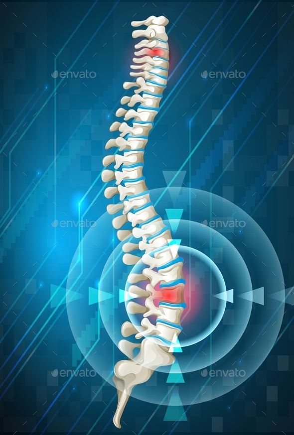 Human Spine Showing Back Pain - Miscellaneous Conceptual