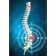 Human Spine Showing Back Pain - GraphicRiver Item for Sale