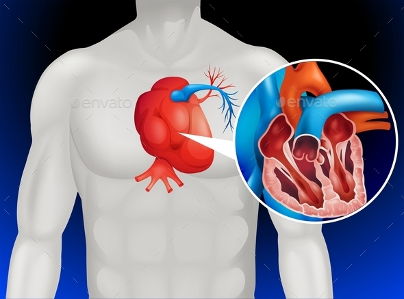 Heart Disease Diagram in Detail - Miscellaneous Conceptual