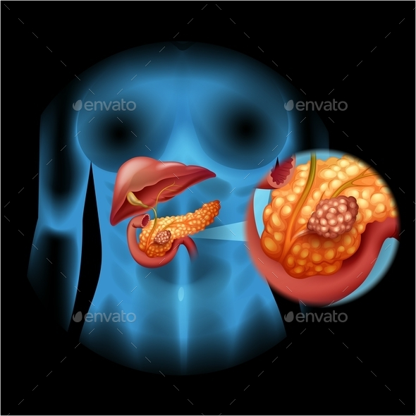 Pancreas Cancer Diagram in Detail - Miscellaneous Conceptual