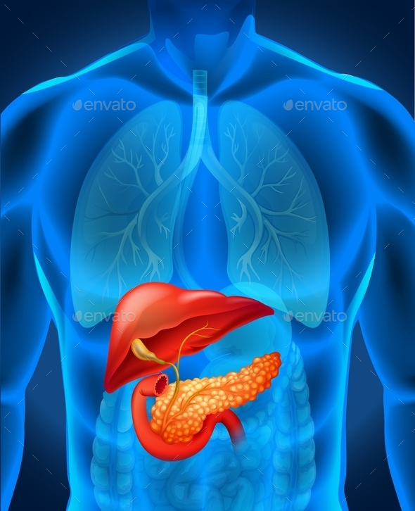 Pancreas Cancer in Human Body - People Characters