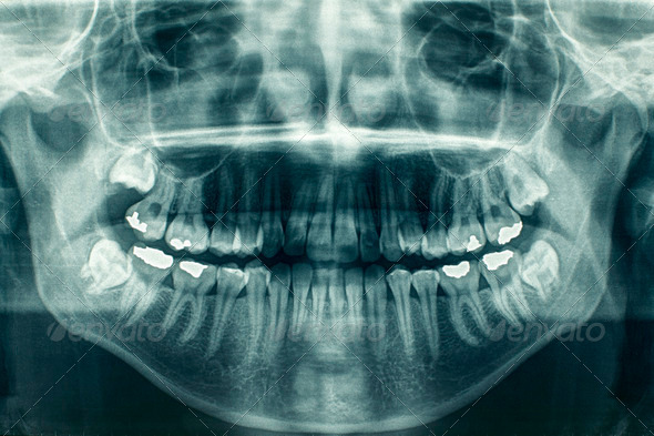 Panoramic dental X-Ray - Stock Photo - Images