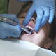 Kid Receives Teeth Polish - VideoHive Item for Sale