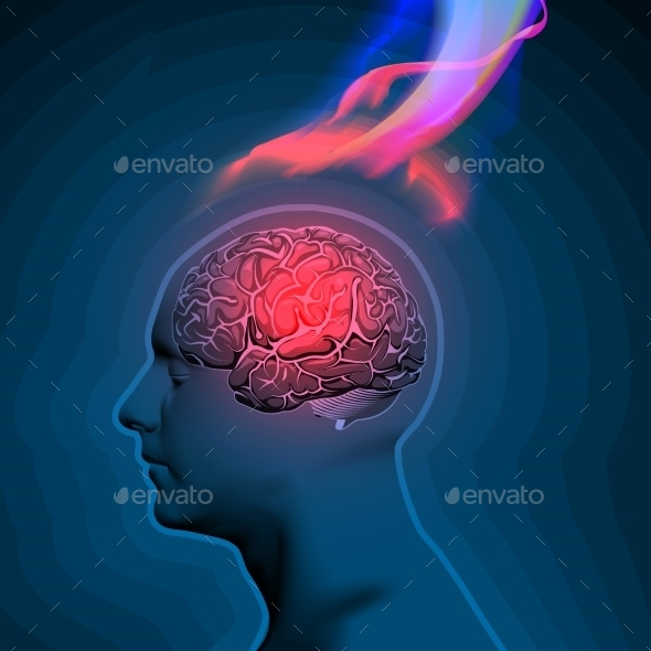 Vector Illustration Of Headache With Flames - Health/Medicine Conceptual