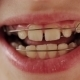 Dental Plate In The Teeth Of The Child - VideoHive Item for Sale
