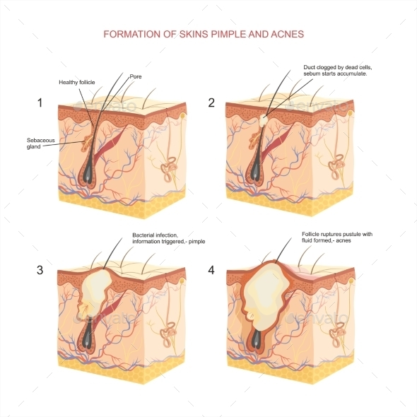Formation of Skin Pimple and Acnes - Health/Medicine Conceptual