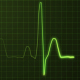 Realistic Heartbeat / EKG Display - VideoHive Item for Sale