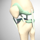 Rupture Of The Anterior Cruciate Ligament - VideoHive Item for Sale
