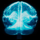 Cool X-ray of the Brain - VideoHive Item for Sale