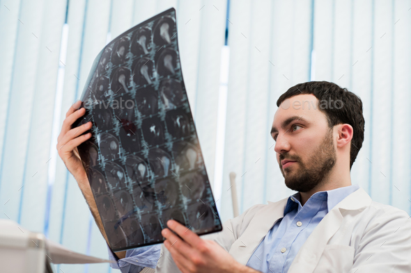 Closeup portrait of intellectual man healthcare personnel with white labcoat, looking at brain x-ray - Stock Photo - Images