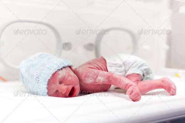 Newborn boy covered in vertix in incubator - Stock Photo - Images