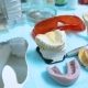 Modern Prosthetic Dentistry - VideoHive Item for Sale