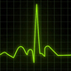Heartbeat Monitor - Electrocardiogram - VideoHive Item for Sale
