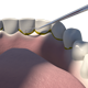 3D Dental Scaling - VideoHive Item for Sale