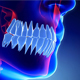 Jaw With Teeth Xray Scan - VideoHive Item for Sale