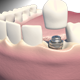Dental Implants - VideoHive Item for Sale