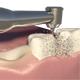 Dental Bridges (3 Unit Bridges Procedure) - VideoHive Item for Sale