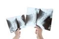 Radiologist looking at cervical spine image - PhotoDune Item for Sale