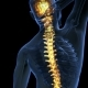 Backache in Back Bones - VideoHive Item for Sale
