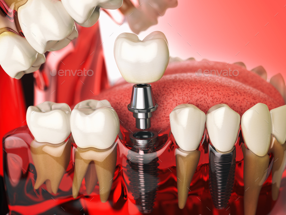 Tooth implant in the model human teeth, gums and denturas. Denta - Stock Photo - Images