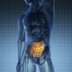Anatomy Scan of Human Small Intestine - VideoHive Item for Sale