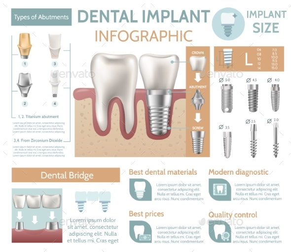 GraphicRiver Dental Implant Tooth Care Medical Center Dentist 20235402