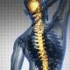 Backache in Back Bones
