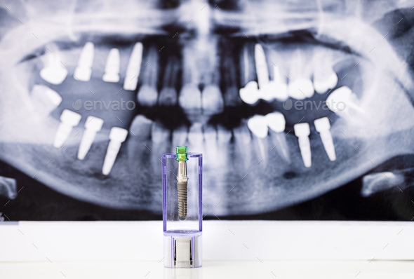 Dental Implant and x-ray picture as background - Stock Photo - Images