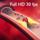 Blood Clot - VideoHive Item for Sale