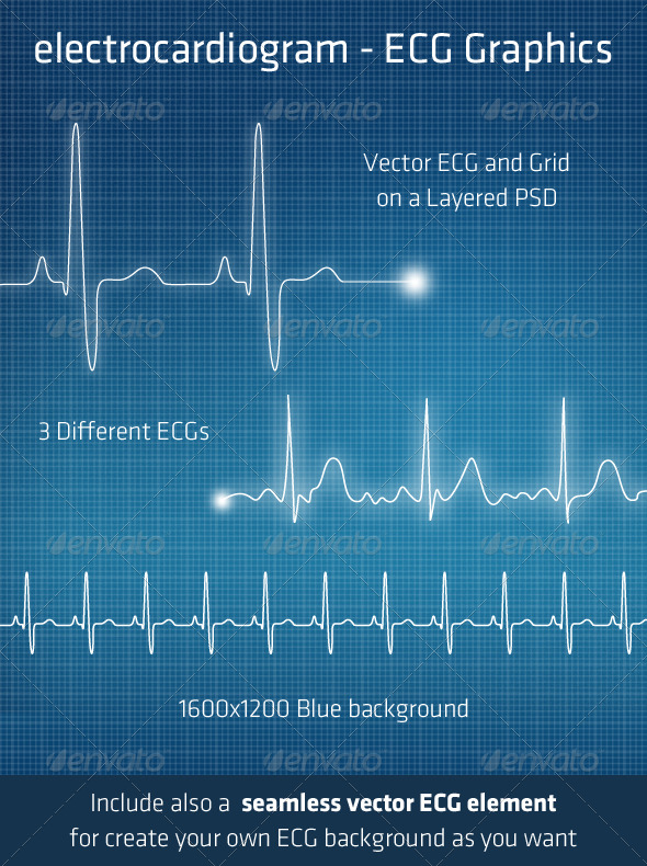 ECG - Electrocardiogram Background Elements - Technology Conceptual