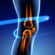 Painful Knee Animation - VideoHive Item for Sale