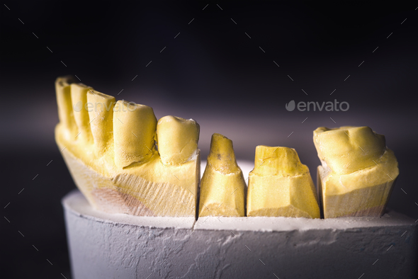 Dental Prosthesis Prosthetic Laboratory - Stock Photo - Images