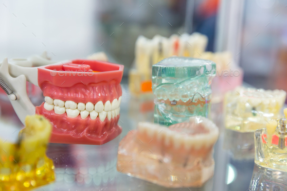 Denture treatment, dental implants, orthodontic - Stock Photo - Images