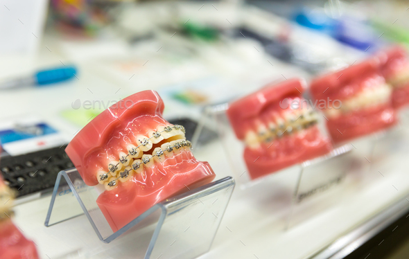 Dental, medicine equipment, orthodontic - Stock Photo - Images