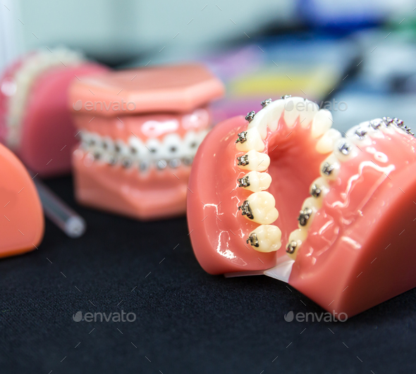 Dental or orthodontic tools, denture closeup - Stock Photo - Images