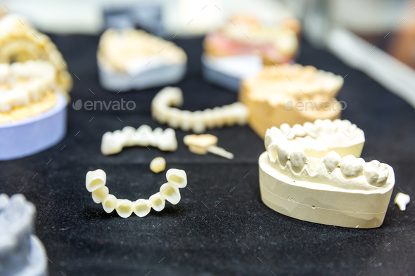 Denture treatment, dental implants closeup - Stock Photo - Images