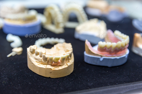 Denture, prosthetic dentistry, dental implants - Stock Photo - Images