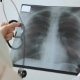Skilled Doctor Holds X-ray of Lungs, Standing in Clinic Indoors - VideoHive Item for Sale