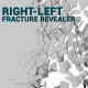 Right-Left Fracture Rrevealer - VideoHive Item for Sale