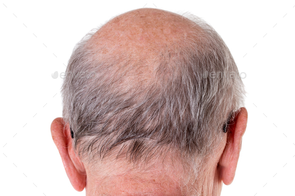 Back of the bald head of old man. - Stock Photo - Images