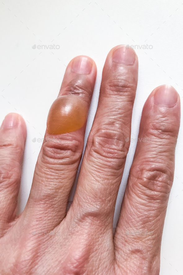 Close-up on finger with painful inflammed fluid-filled blister - Stock Photo - Images