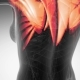 Human Muscle Anatomy - VideoHive Item for Sale